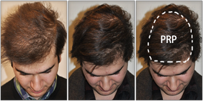 PRP Hair Growth Treatment In Chandigarh - Chandigarh Hair Transplant