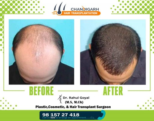 Best Hair Transplant Chandigarh | Chandigarh Hair Transplantation
