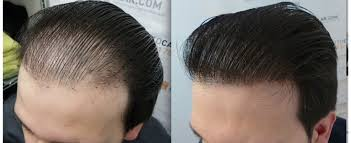 best FUE Hair Transplant in Chandigarh