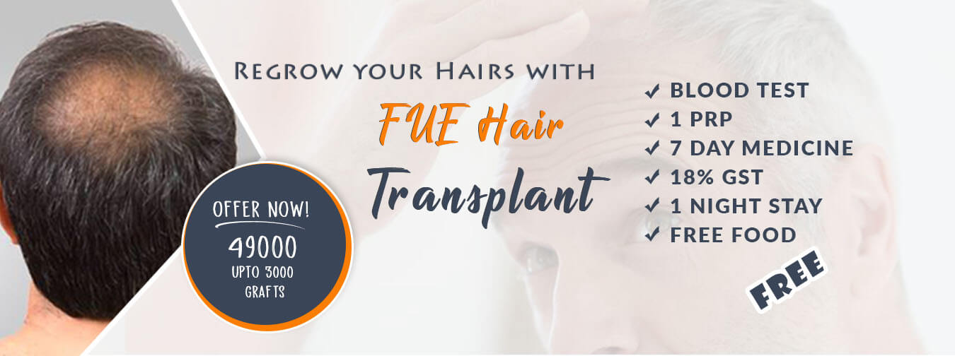 Cost of Hair Transplant in Chandigarh