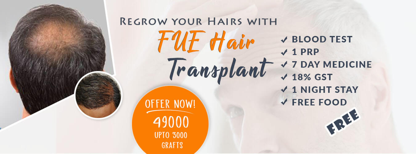 hair transplant chandigarh